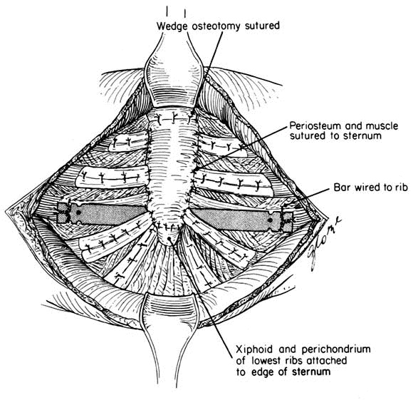 Repair Of Pectus Deformities With Sternal Support The Journal Of