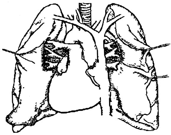 journal of heart and lung transplantation author instructions