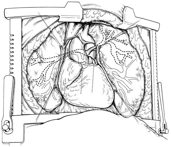 The Clamshell Incision For Bilateral Pulmonary Artery Reconstruction