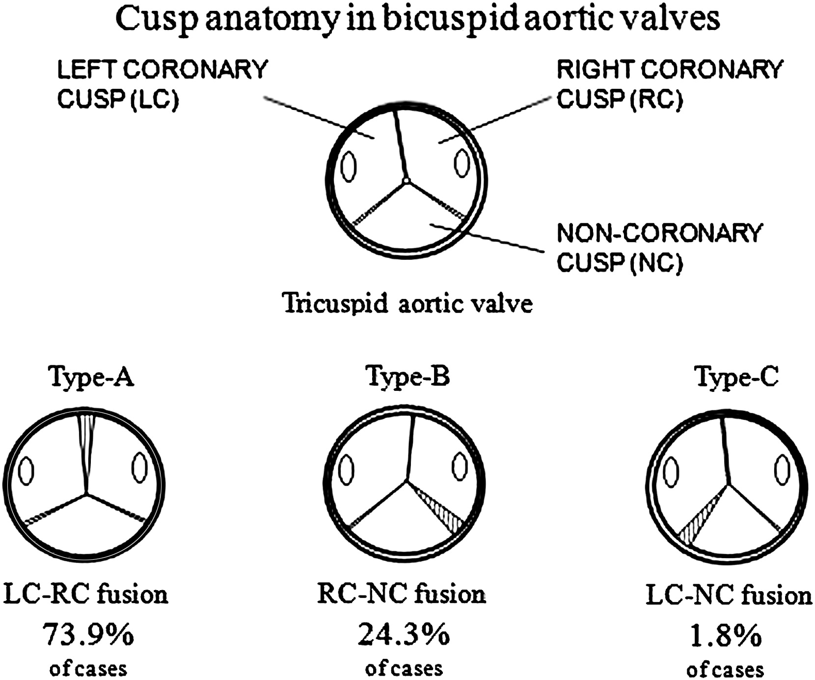 Is aortic wall degeneration related to bicuspid aortic valve anatomy ...