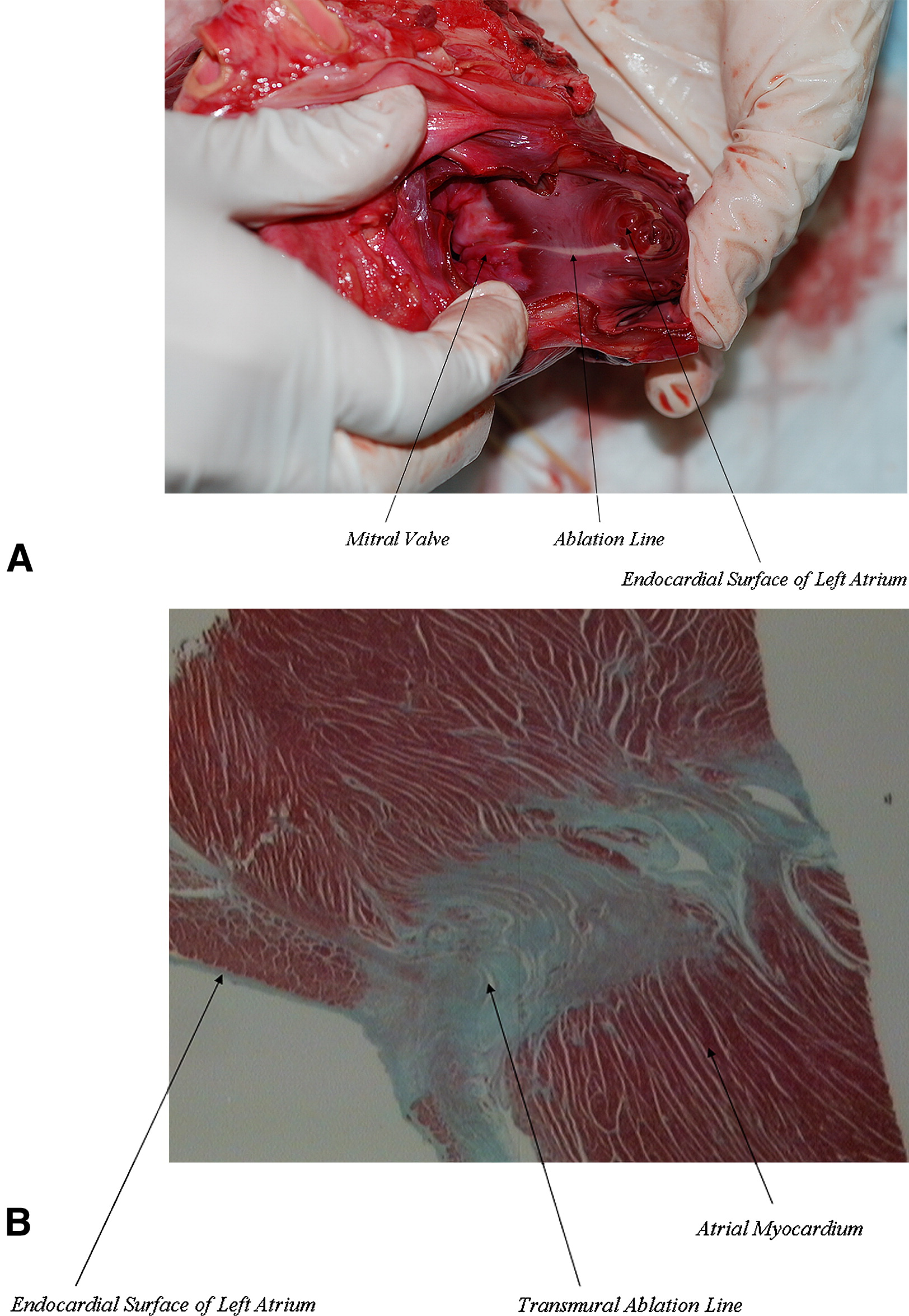 the goals of the experimental ablation or lesion studies Experimental: vapor ablation, device: bronchoscopic thermal vapor  with the  safety of the patient or evaluation of the study objectives.