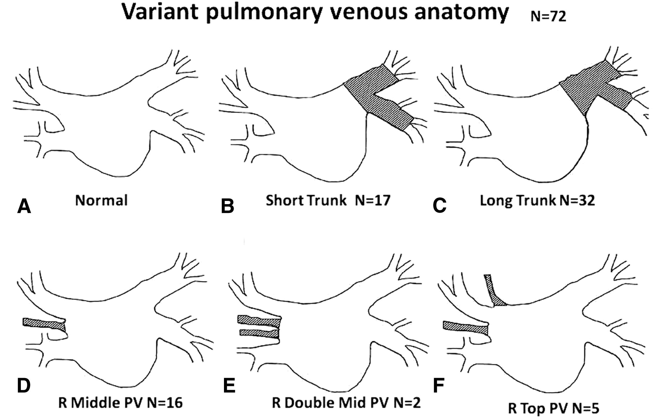 Comprehensive surgical approach to treat atrial fibrillation in ...