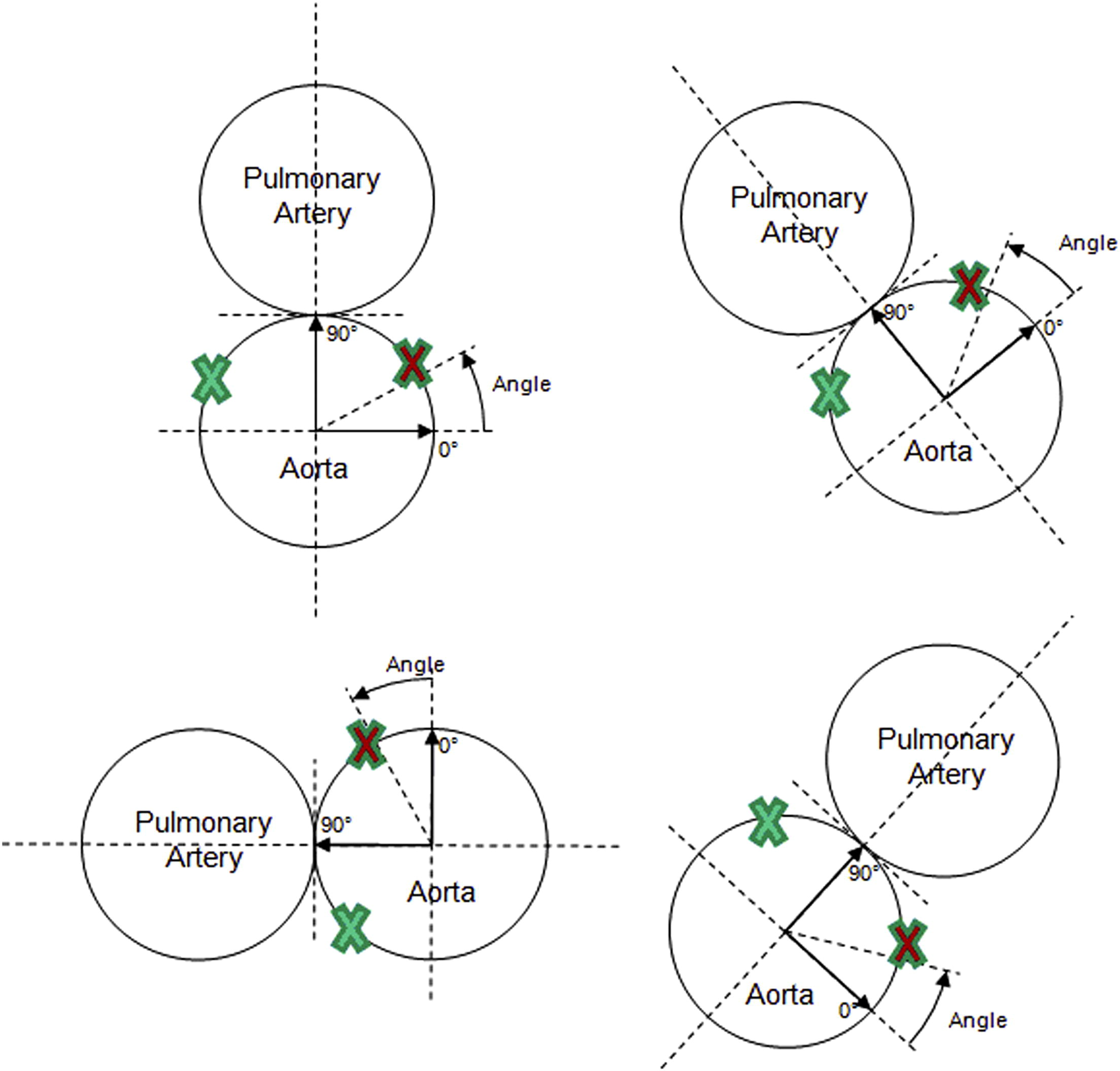 Mechanisms of coronary complications after the arterial switch for ...