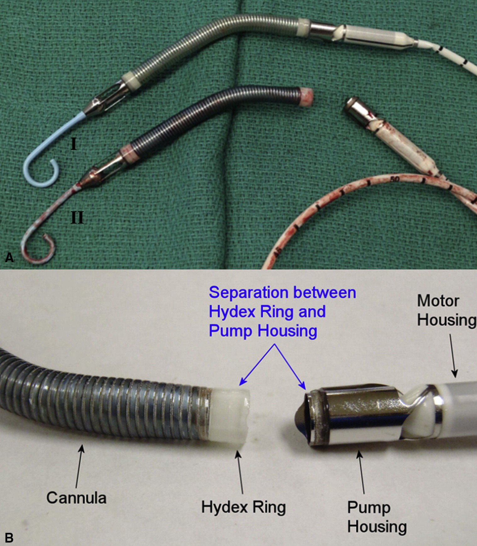 Unconventional use of the fogarty embolization catheter for Danvers motor co inc