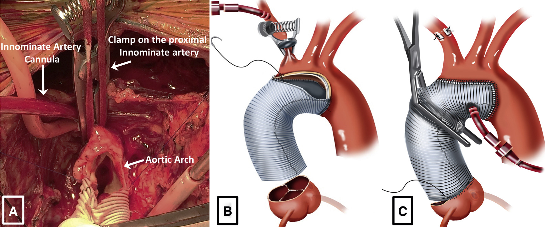 Direct Innominate Artery Cannulation An Alternate Technique For