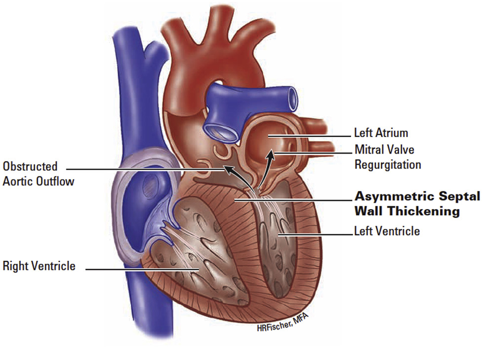 Surgical septal myectomy: An enduring but evolving treatment for ...