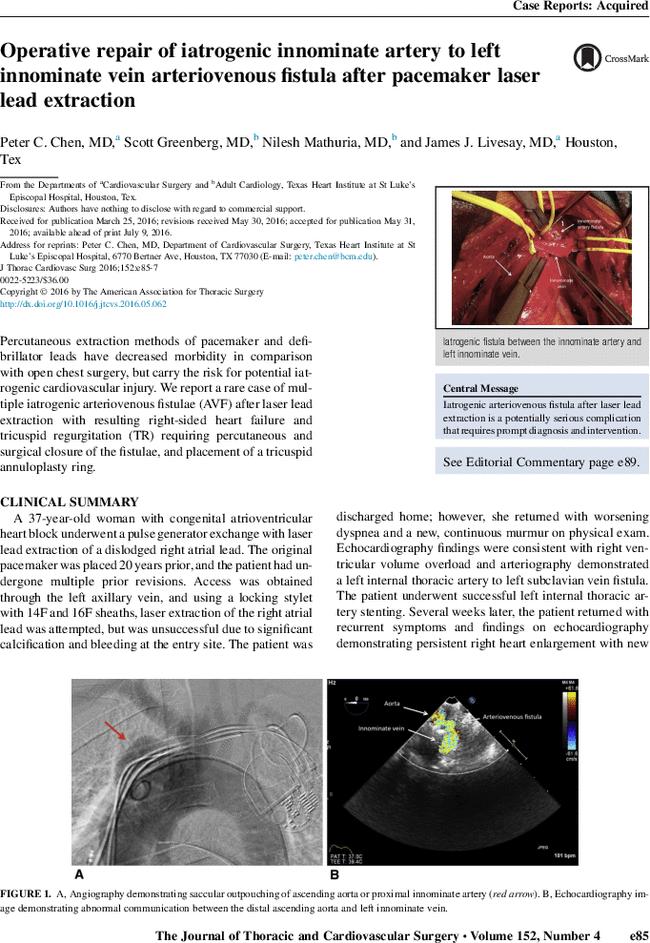 Operative Repair Of Iatrogenic Innominate Artery To Left Innominate