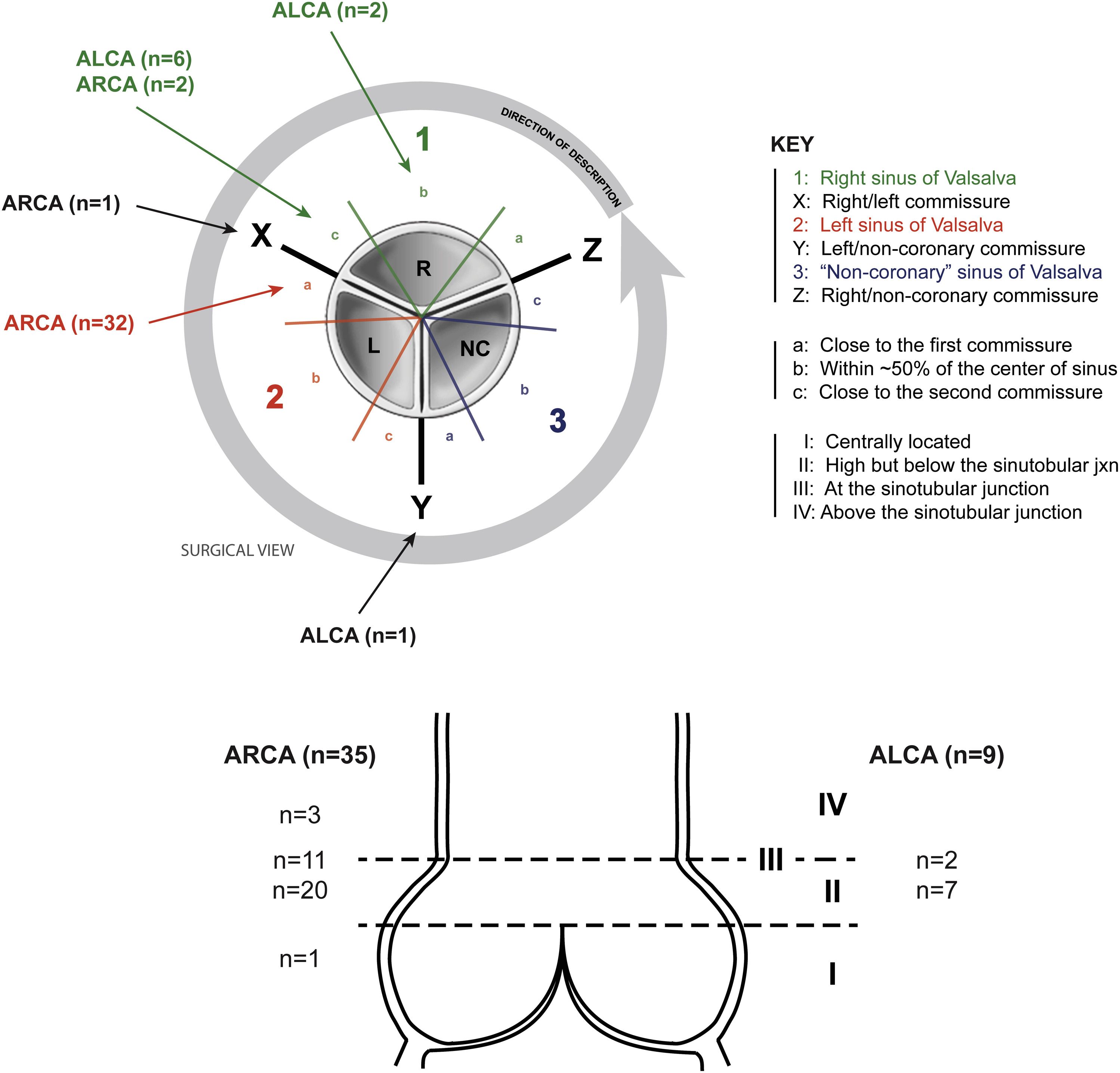 Outcomes of surgical intervention for anomalous aortic origin of a ...